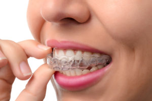 clear braces - orthodontic treatment